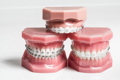 orthodontics-cheltenham