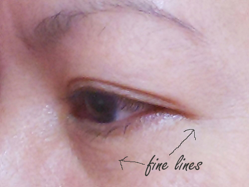 eye bag and fine lines